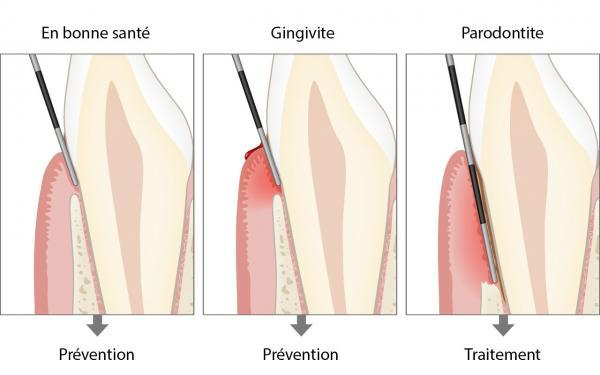 Diagnostic De La Parodontite En Savoir Plus Periodontal Health Com Fr